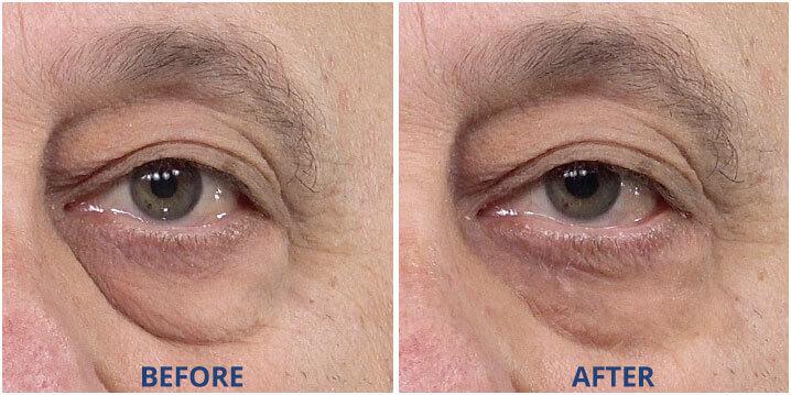example eye bag - Halal OEM Manufacturer